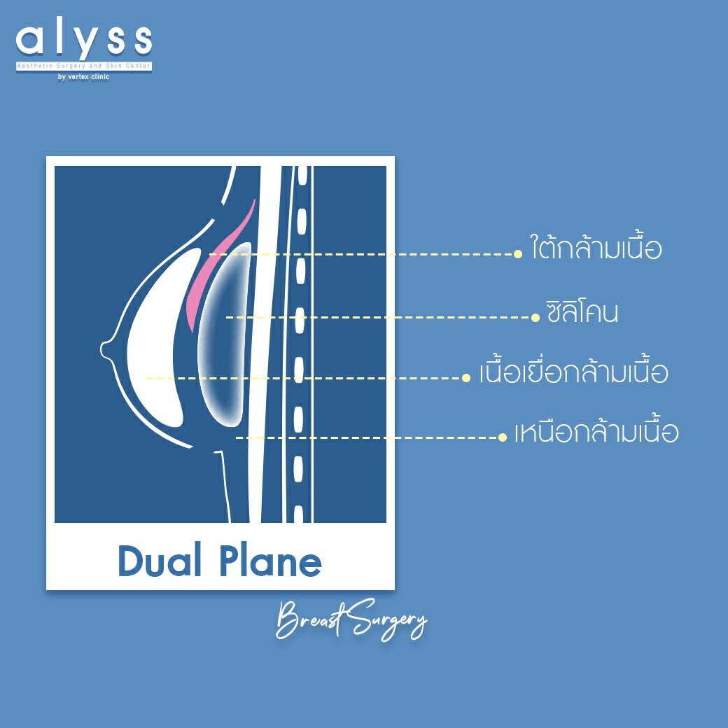 ผสาน 2 เทคนิคไว้ในหนึ่งเดียวด้วย Dual Plane