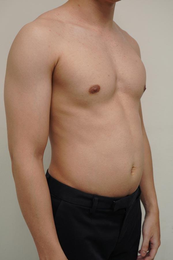 รีวิวดูดไขมันสร้าง six pack รีวิวดูดไขมัน six pack ดูดไขมัน six pack ราคา